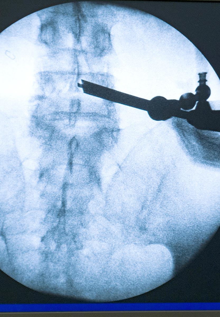 endoscopia avanzada de columna minimamente invasiva en madrid
