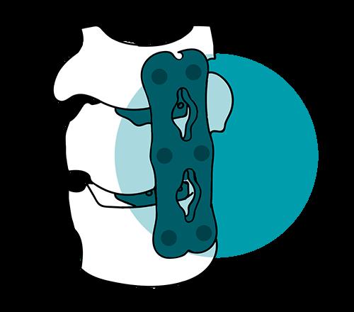 icono artrodesis cervical tratamiento columna