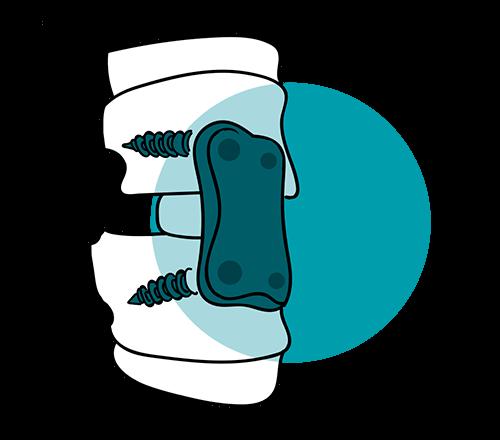 icono artrodesis lumbar tratamiento columna