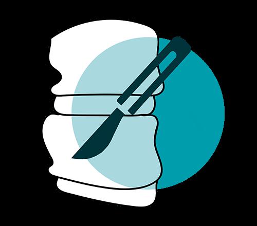 icono microcirugia vertebral