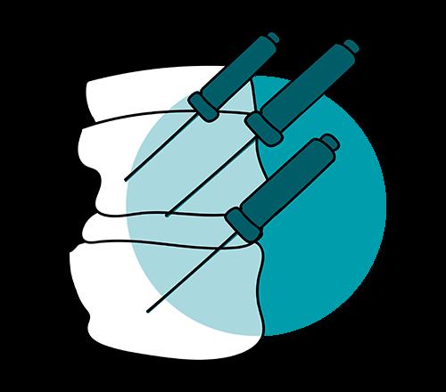 icono tratamiento columna radiofrecuencia