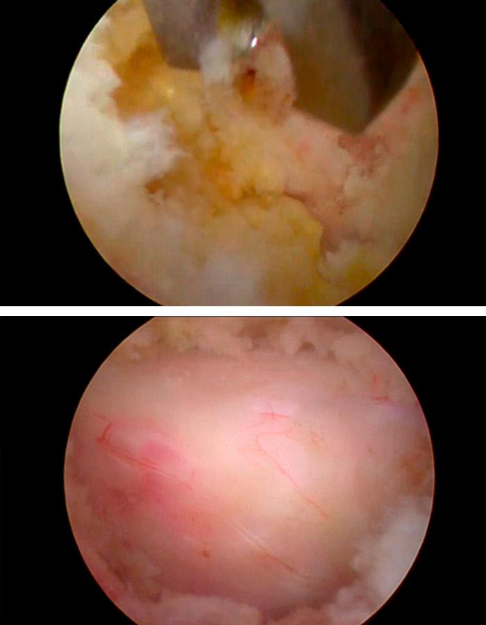 Cirugia de columna para estenosis de canal
