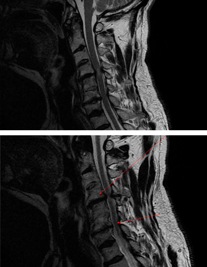 cirugia avanzada de columna cervical