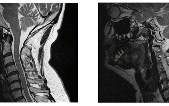 hernia-discal-cervical-540x339