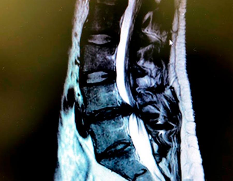 Hernia discal lumbar a extraer