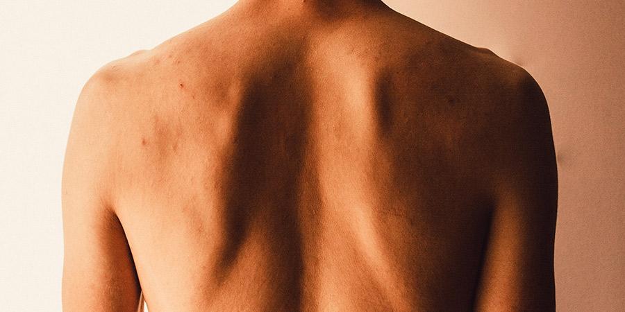 deformaciones-de-la-columna-vertebral-cifosis