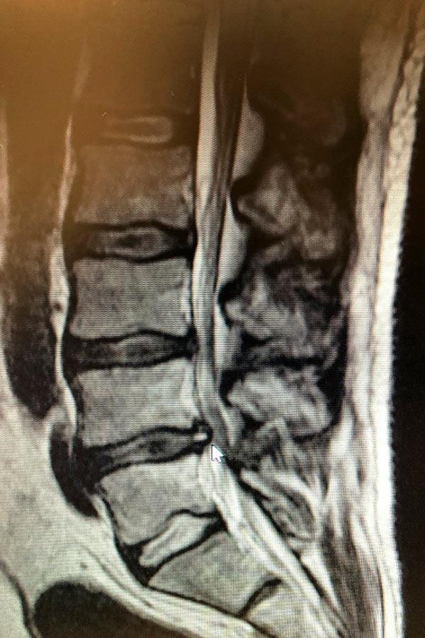 migracion-caudal-de-hernia-discal-lumbar