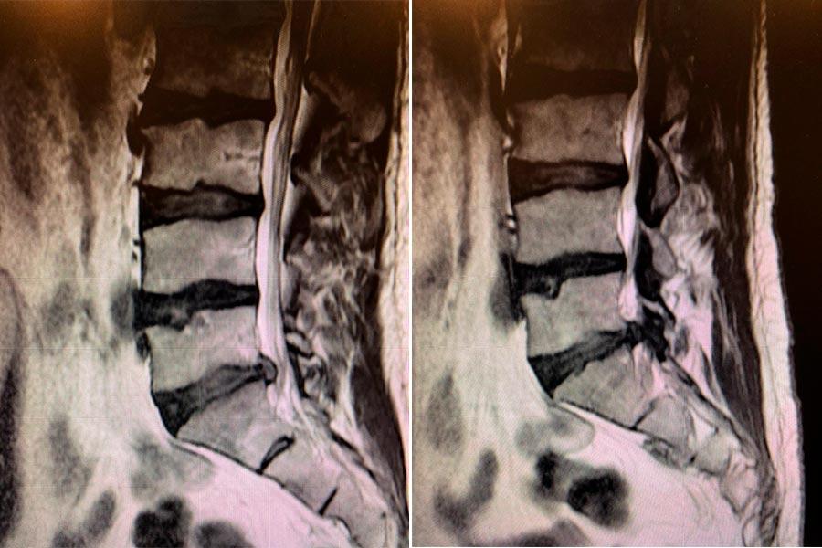 hernia-discal-lateralizada