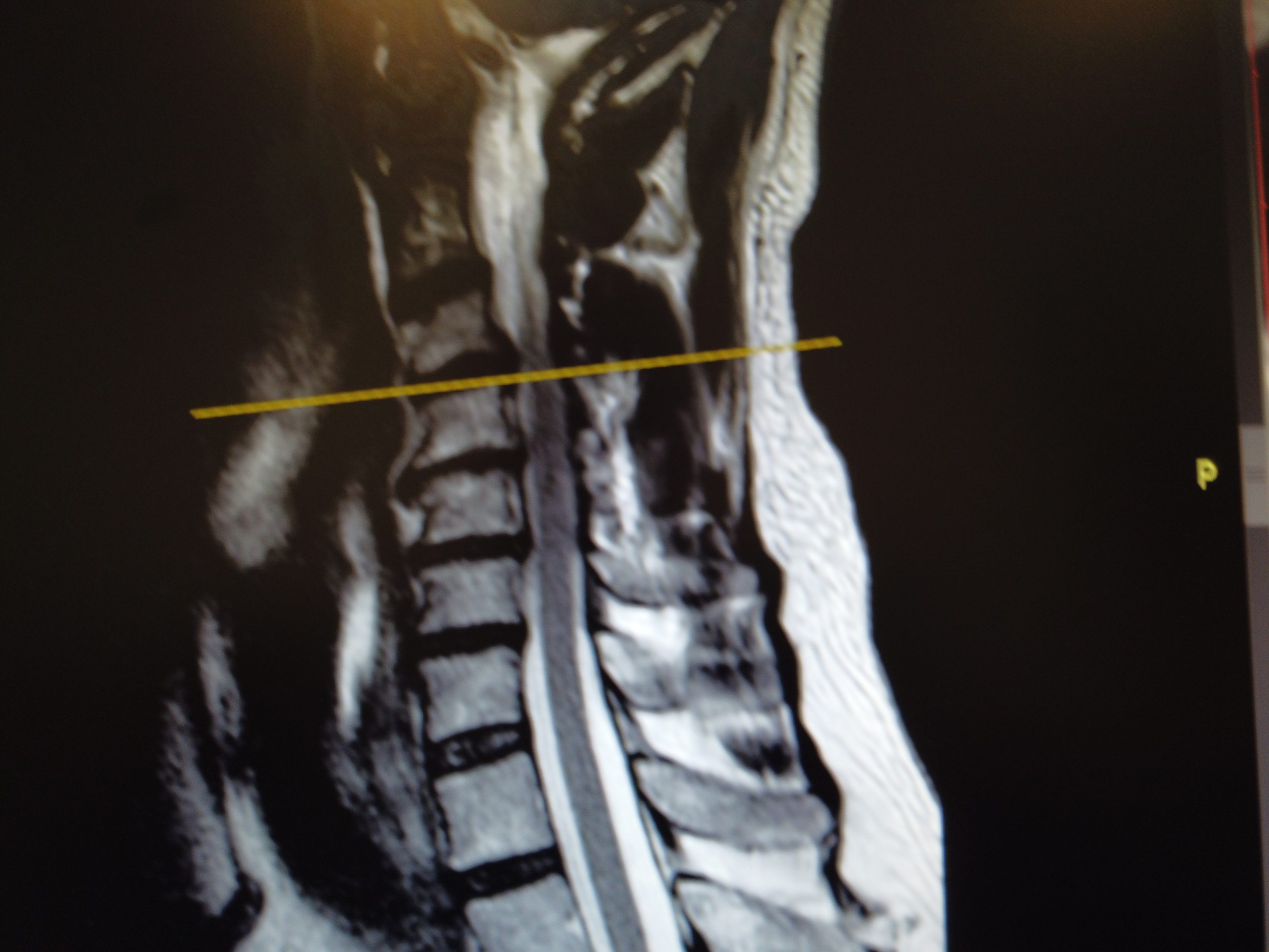 hernias discales cervicales miltiples