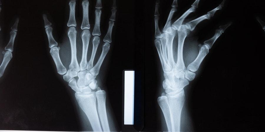 prevenir-pérdida-masa-ósea