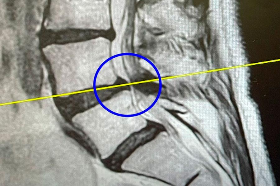 diagnostico-estenosis-canal